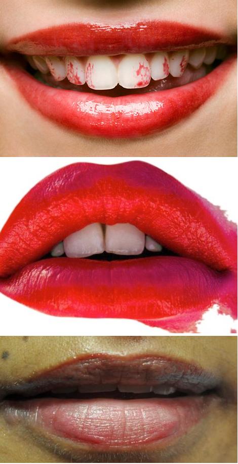 lips plf